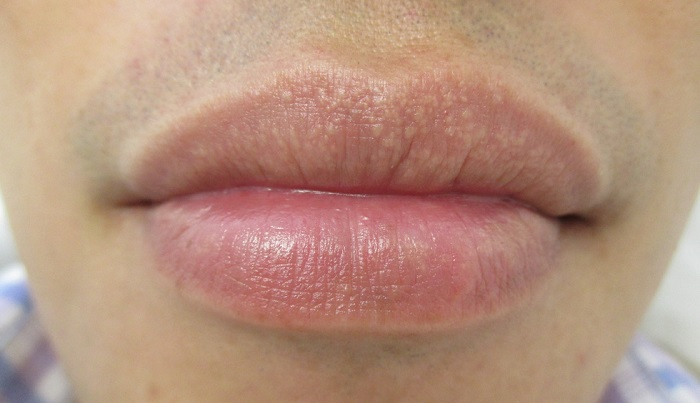 Fordyce Spots On Lips And Shaft Causes And Treatment