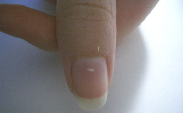 Line Texture On Nails : White spots on fingernails and toenails causes treatment